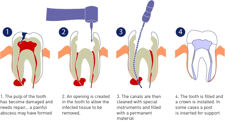 What occurs during a root canal treatment?
