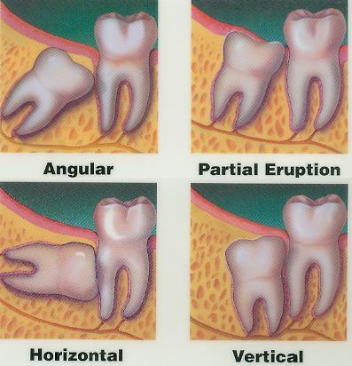 Different Ways Wisdom Teeth Grow