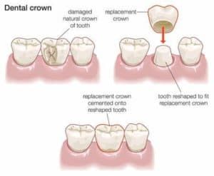 What do dental crowns do?