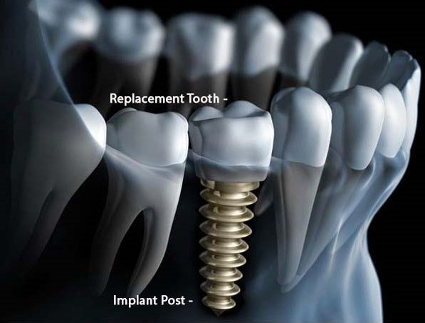 Why should I get a dental implant?