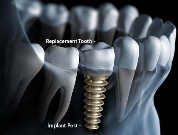 dental implant missing teeth