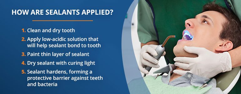 Dental Sealant Application