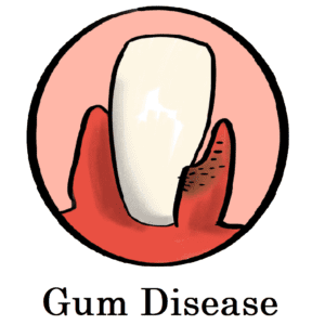 Dental Services for Fighting Gum Disease